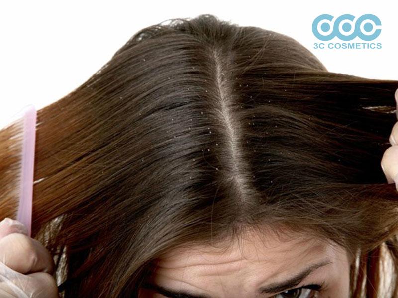 Đánh bay gàu cho tóc sạch hơn