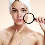Phương pháp giảm thâm mụn cho làn da đẹp không tì vết