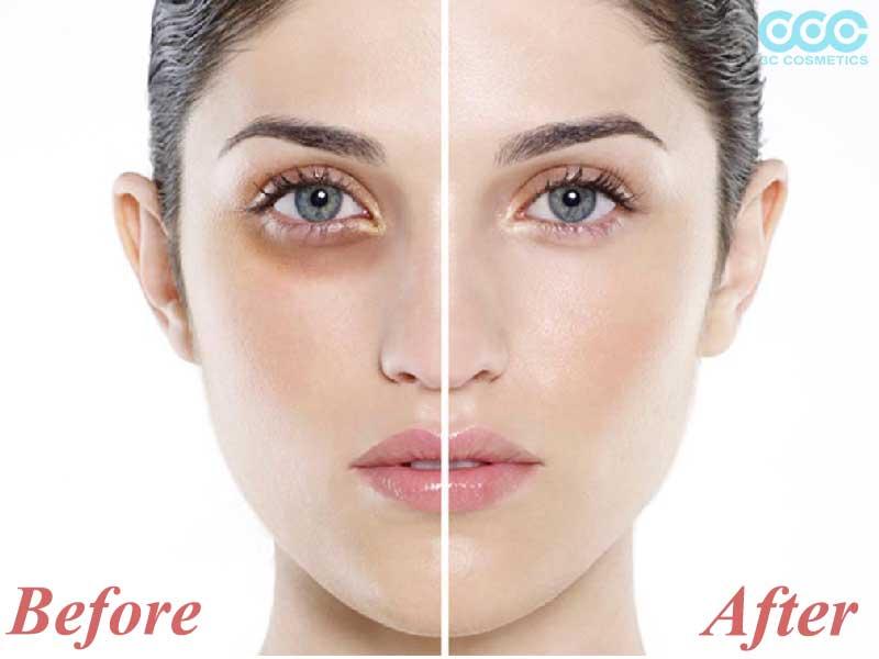 trước và sau khi sử dụng cream chống thâm mắt