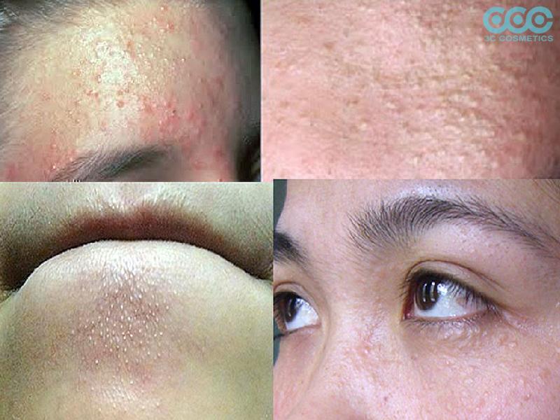 Nguyên nhân dẫn đến da bị đẩy mụn và bùng phát mụn