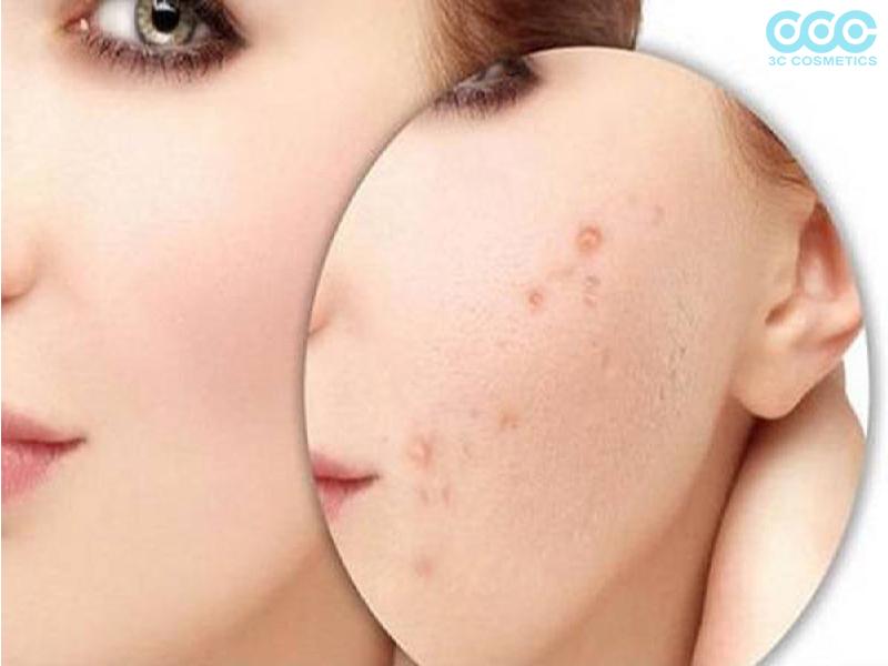 Sử dụng mặt nạ dưỡng da chanh mật ong để trị mụn ẩn
