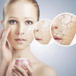 Những hiểu biết về tình trạng da khô