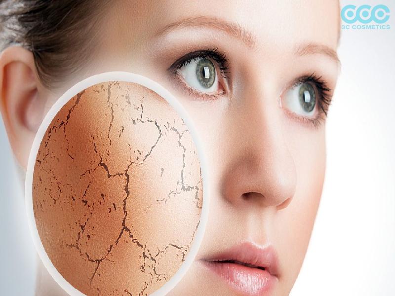 Da khô và da nhạy cảm liên quan đến với nhau không?