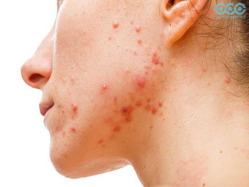 Các dấu hiệu khi thấy da bị dị ứng