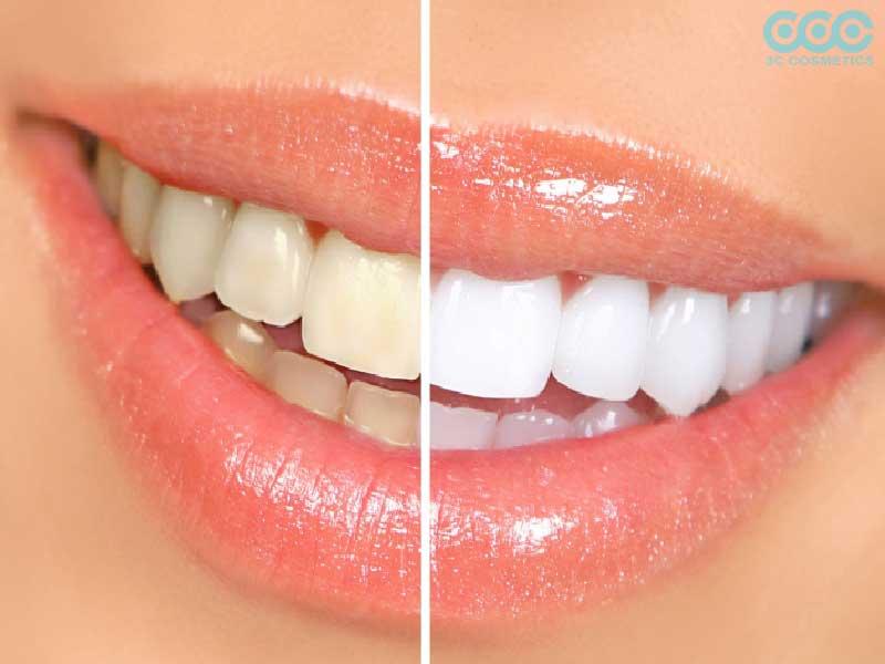 Ưu và nhược điểm của tẩy trắng răng bằng baking soda