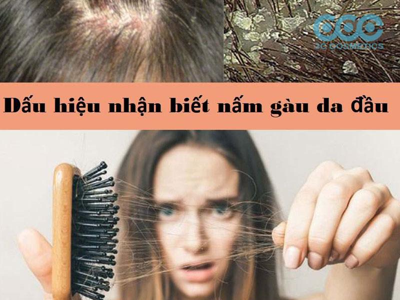 7 dấu hiệu bệnh vảy nến da đầu (phân biệt với gàu, nấm, viêm da)