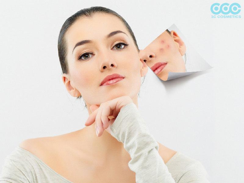 Vì sao mùa đông nên chăm sóc làn da bị mụn kỹ hơn mùa hè