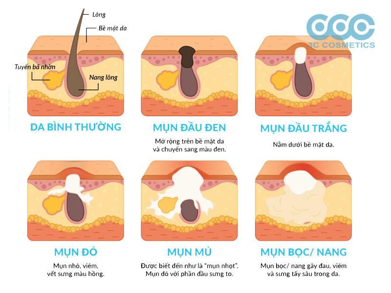Các loại mụn trứng cá