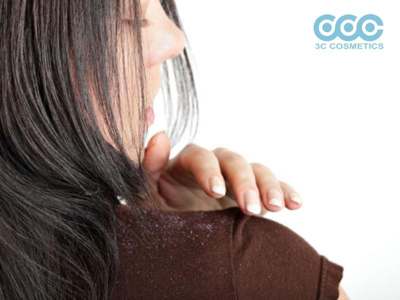 biện pháp để giúp bạn có thể ngăn ngừa gàu trong mùa đông