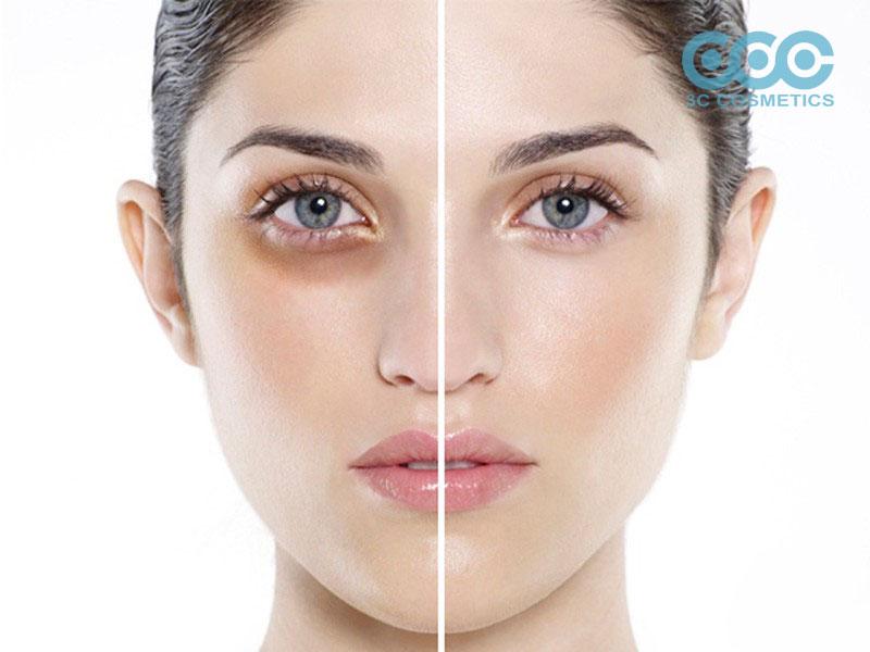 Bên cạnh việc sử dụng kem trị thâm mắt cần phối hợp thêm các phương pháp sau để có đôi mắt đẹp
