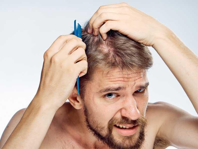 Nguyên nhân khiến tóc thưa mỏng ở nam giới