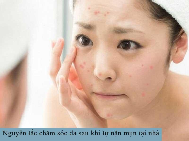 Nguyên tắc chăm sóc da sau khi tự nặn mụn