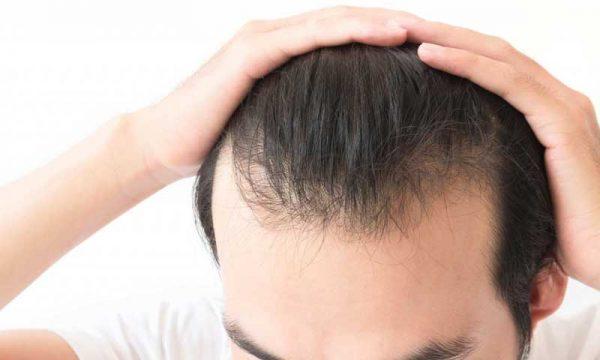 Tình trạng tóc mỏng thưa